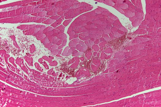 Histology sample acquired by Canon EOS DSLR camera