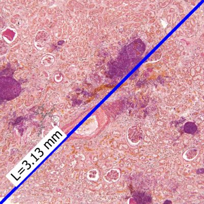 Kidney with candida infection acquired by PROMICAM 3-4C