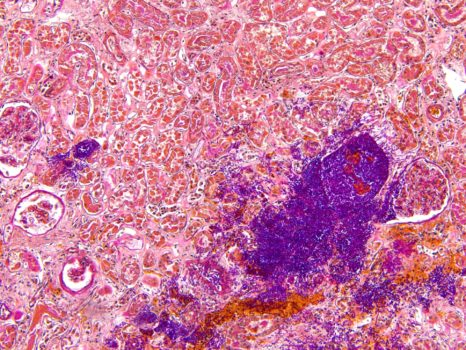 Kidney with candida infection acquired by PROMICAM 3-3CC